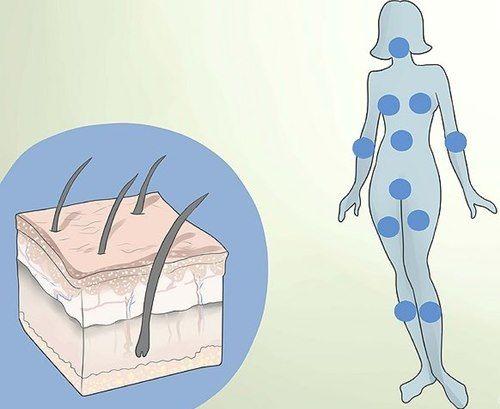 Phụ nữ mắc PCOS có thể mọc nhiều ria mép, da nhờn, có nhiều mụn trứng cá, rụng tóc