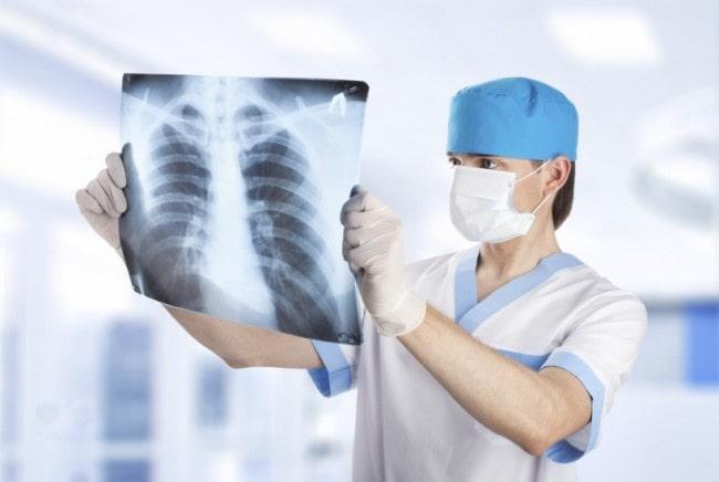 Chụp X-quang phổi có vết mờ 1