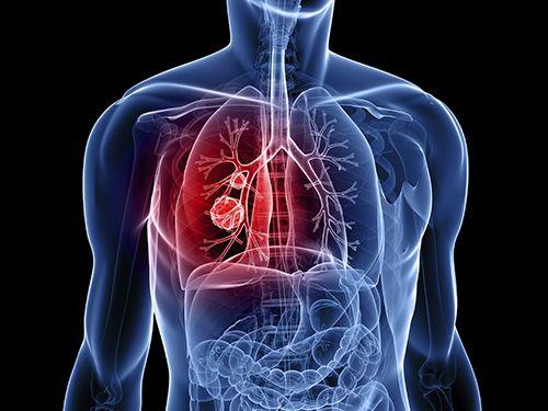 Ho ra máu có thể cảnh báo ung thư phổi.