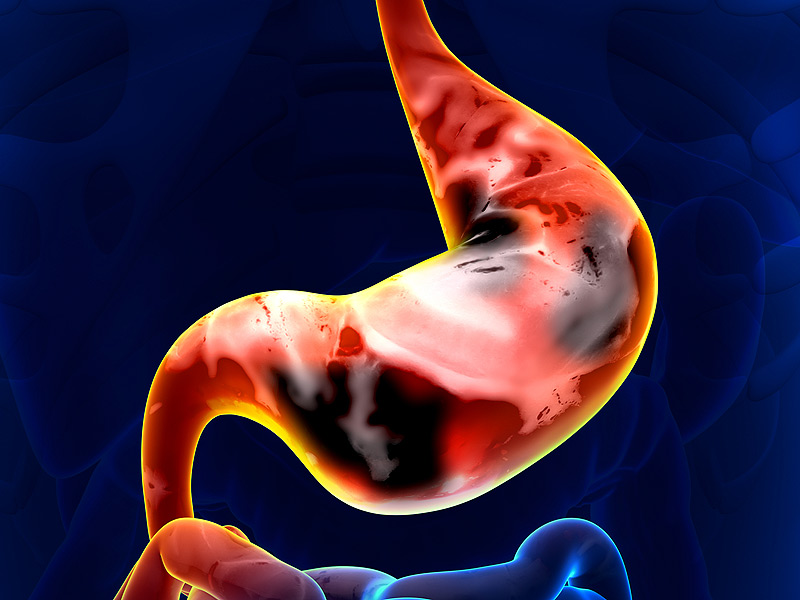 Các dấu hiệu có thể bao gồm: buồn nôn và nôn, chướng bụng đầy hơi kéo dài, ăn nhanh no, ợ nóng thường xuyên, đau thượng vị