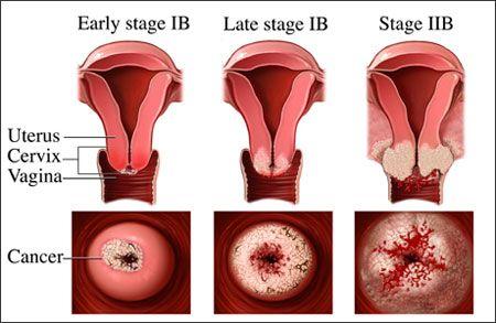 Đây là giai đoạn còn gọi là là Tiền ung thư được xác định sau 5 đến 10 năm kể từ khi bị nhiễm virus HPV.