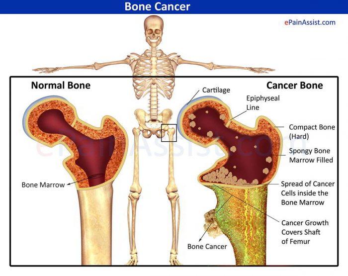 Sarcoma xương là gì 4