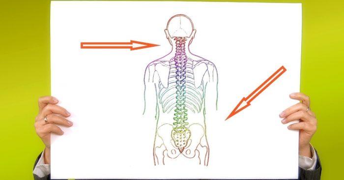 Sarcoma xương là gì 1
