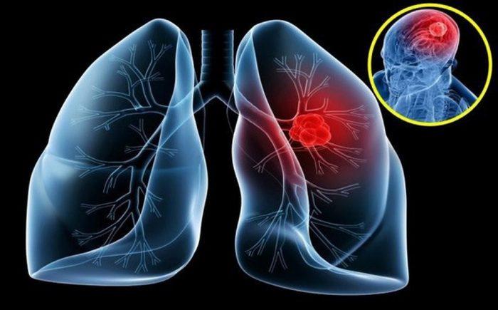 Khối u ở phổi có nguy hiểm không