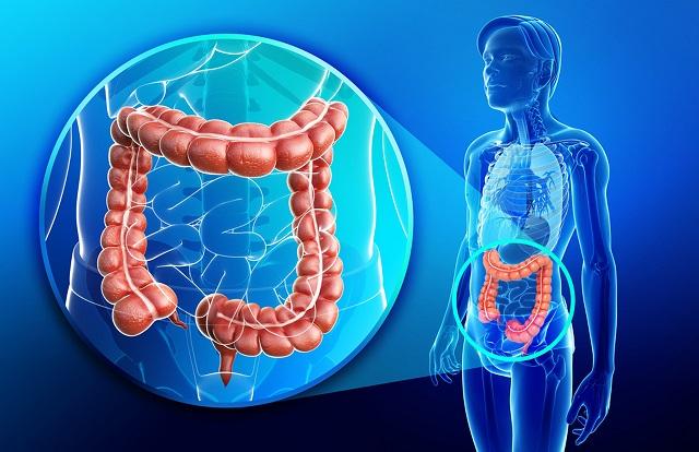 người bệnh có thể thấy: rối loạn tiêu hóa, khó chịu dai dẳng ở ổ bụng như co cứng cơ, chướng bụng hoặc đau, cảm giác ruột không rỗng hoàn toàn,