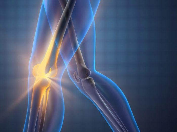 Sarcoma xương là gì 3