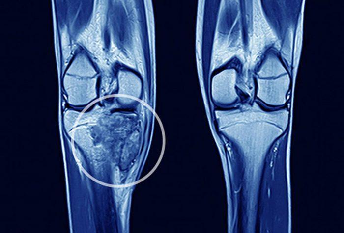 Sarcoma xương là gì