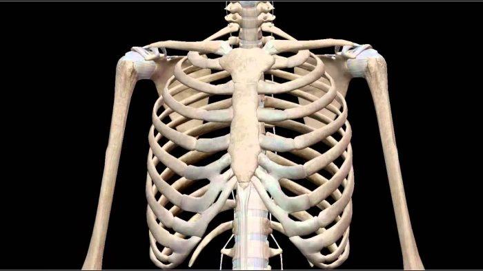 Sarcoma xương là gì 2