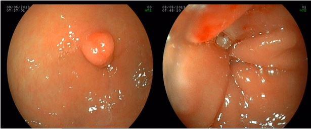 Polyp phình vị dạ dày là gì