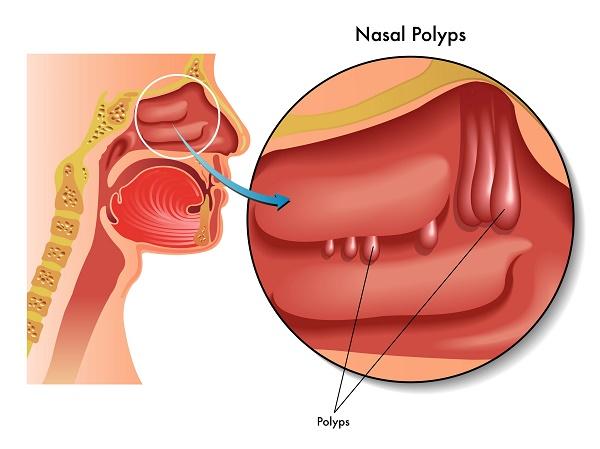 Polyp là gì