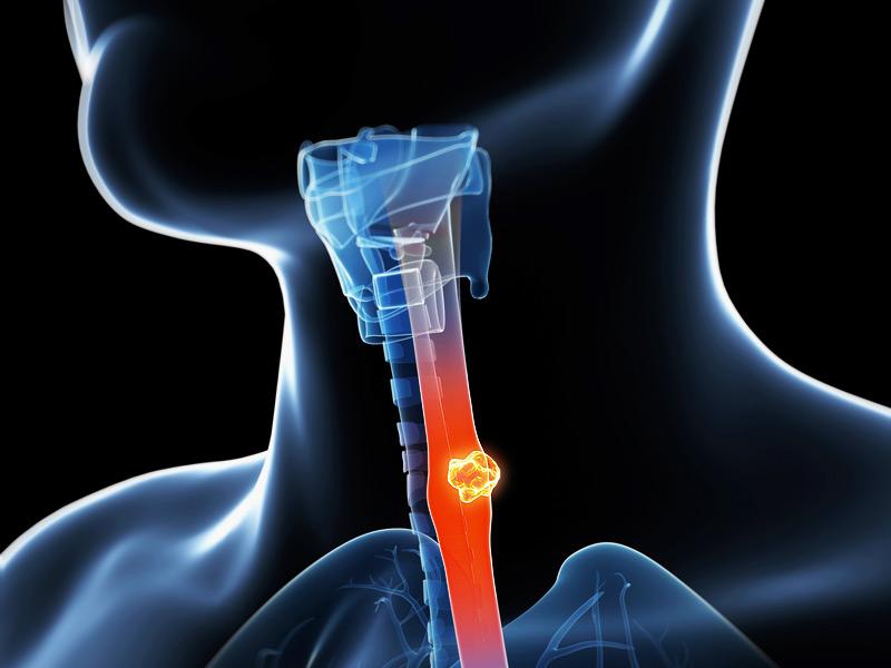 Gần như tất cả ung thư tuyến của thực quản và nhiều loại u như vậy ở vùng tâm vị đều phát sinh từ dị sản Barrett. Biểu mô dị sản có khả năng ác tính lớn.