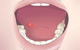 Điều trị ung thư miệng