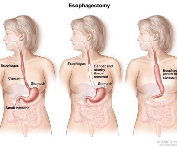 Điều trị ung thư dạ dày, thực quản