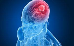 Điều trị ung thư não