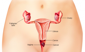 Điều trị ung thư âm đạo