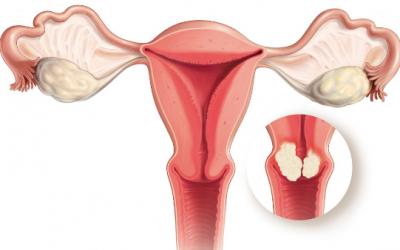 Điều trị ung thư cổ tử cung