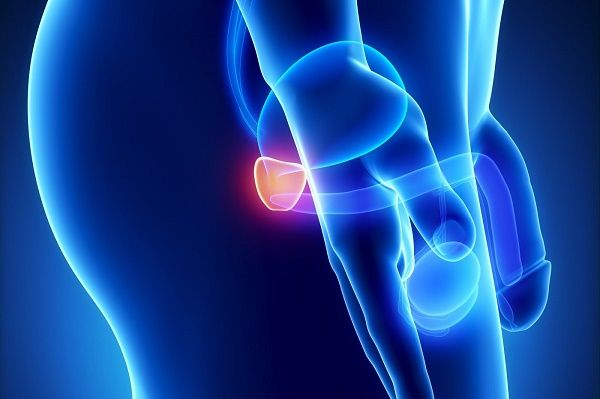 Biểu hiện sớm của ung thư tuyến tiền liệt
