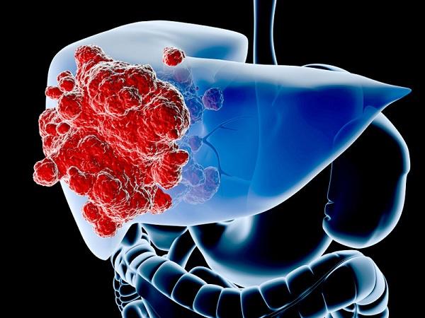 Cách phát hiện sớm bệnh ung thư gan