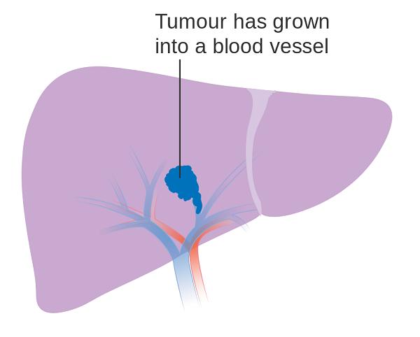 Hình ảnh ung thư gan giai đoạn 2