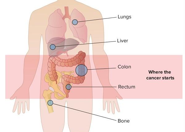 Triệu chứng ung thư di căn gan