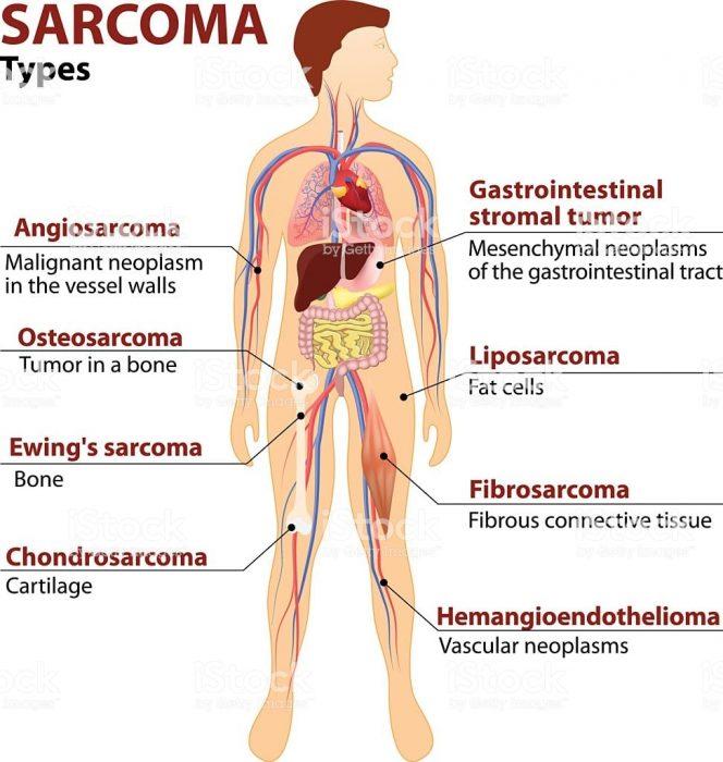 Sarcoma mỡ 1
