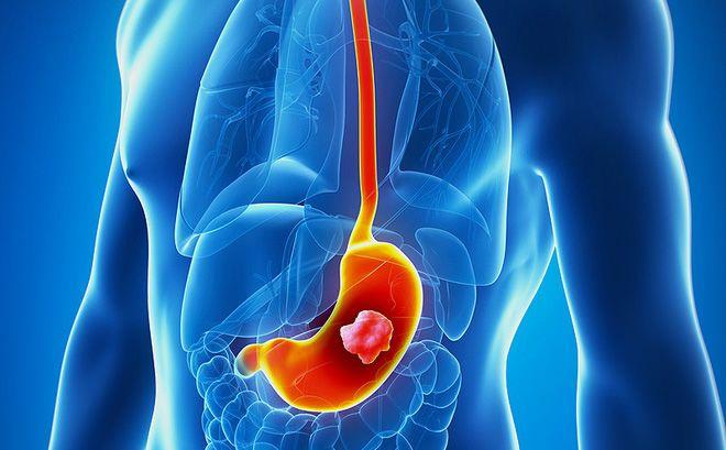 Ăn nhiều muối làm tăng nguy cơ ung thư dạ dày