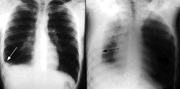 Dấu hiệu tràn dịch màng phổi