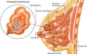Dấu hiệu nhận biết u nang tuyến vú