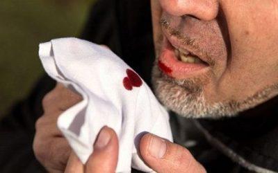 Ho ra máu và sốt là bệnh gì