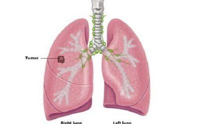 Ung thư phổi giai đoạn sớm có chữa được không?