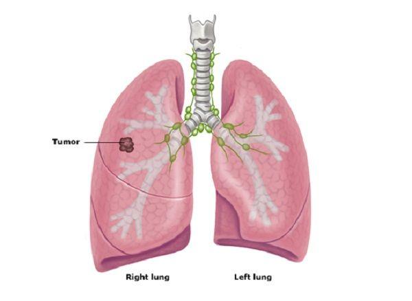 ung thư phổi giai đoạn đầu có chữa được không