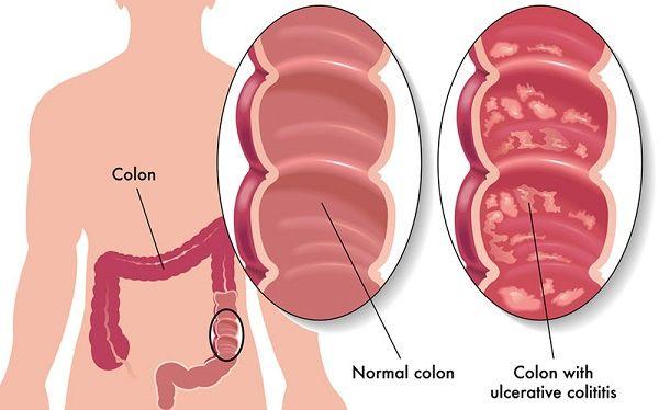 Bệnh viêm đại tràng có nguy hiểm không?