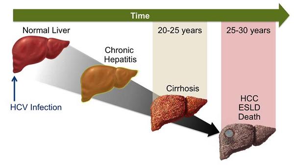 Quá trình hình thành ung thư gan từ khi nhiễm virus viêm gan C - nhiễm virus mạn tính, xơ gan, ung thư gan kéo dài từ 25-30 năm.