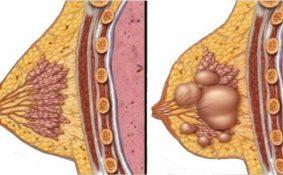 U xơ tuyến vú khi nào cần mổ?
