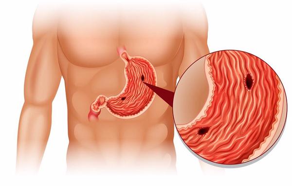 Thủng dạ dày là một biến chứng thường gặp trong viêm loét dạ dày lâu ngày không được điều trị kịp thời.