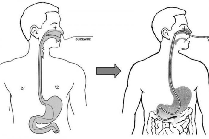 nội soi dạ dày qua đường mũi bao nhiêu tiền