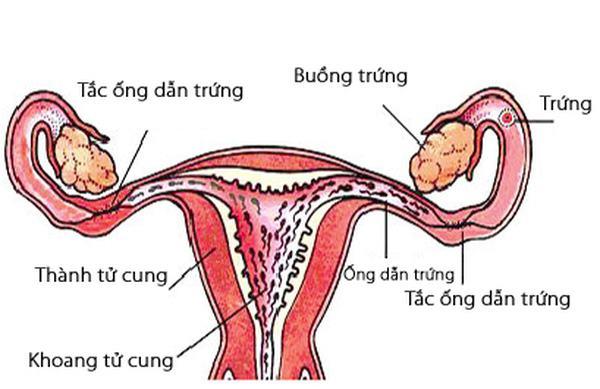 Tắc vòi trứng là tình trạng vòi trứng của chị em bị chít hẹp hoặc dính gây tắc nghẽn, cản trở việc di chuyển của tinh trùng
