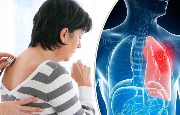 Ung thư phổi là bệnh ung thư dễ mắc và nguy hiểm nhất trong các bệnh lý ung thư.