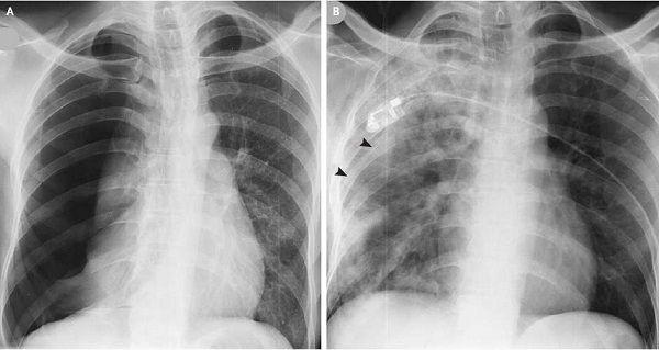Tràn khí màng phổi do nhiều nguyên nhân khác nhau gây ra như nhiễm khuẩn, mắc bệnh hen suyễn....