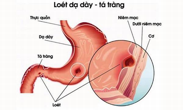 Viêm loét dạ dày là hiện tượng mất cân bằng của các dịch tiêu hóa.