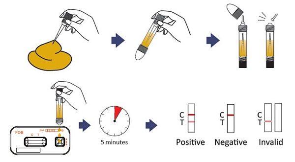 Xét nghiệm tìm máu ẩn trong phân giúp phát hiện sớm ung thư đại trực tràng