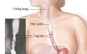 Tỉ lệ chữa khỏi bệnh của ung thư thực quản
