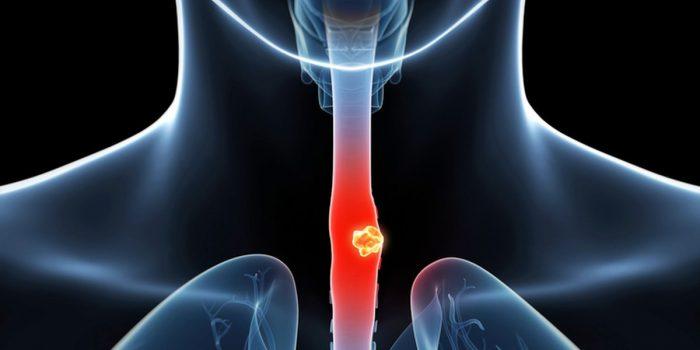 Xét nghiệm máu ung thư thực quản