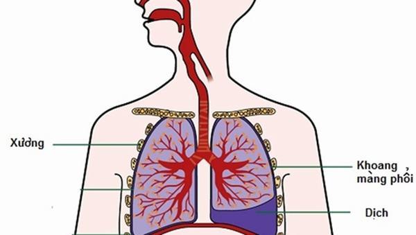 Tràn dịch màng phổi là bệnh thường gặp trong các bệnh lý về đường hô hấp.