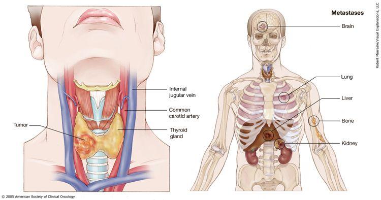 Dấu hiệu ung thư tuyến giáp di căn phổi
