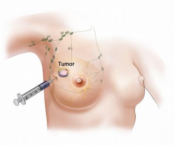 U nhú tuyến vú được cấu tạo bởi tuyến và mô xơ, thường gặp ở phụ nữ trong độ tuổi 35-55.
