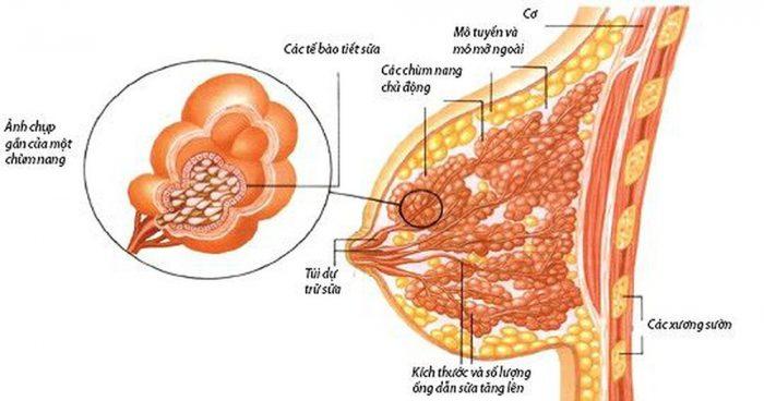 ung thư vú biểu mô là gì
