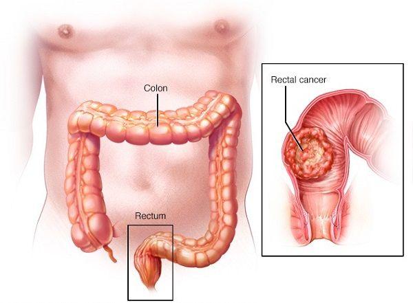 Ung thư đại trực tràng là bệnh nguy hiểm gây tử vong đứng thứ 4 sau ung thư phổi, dạ dày và gan.