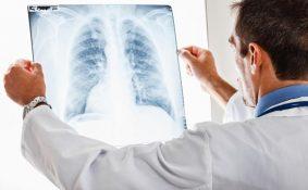 Bệnh xơ phổi có lây không?