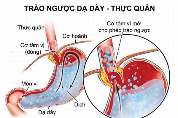 Trào ngược dạ dày là bệnh thường gặp ở đường tiêu hóa, đặc biệt bệnh hay xảy ra ngay sau khi ăn xong